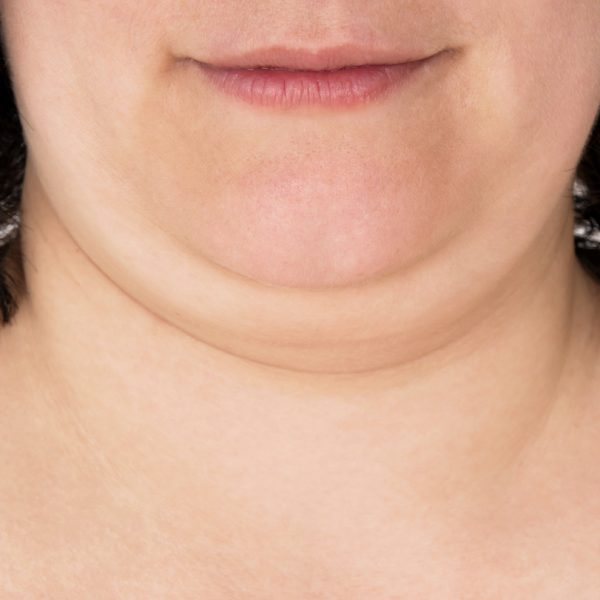 Kybella Before, After and Everything in Between