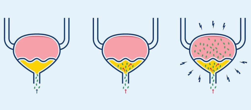 UTI diagram